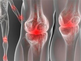 ce pot bea cu artroza articulației gleznei tratați articulațiile pe picioare